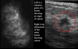 mammogram and ultrasound