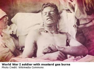 mustard gas soldier